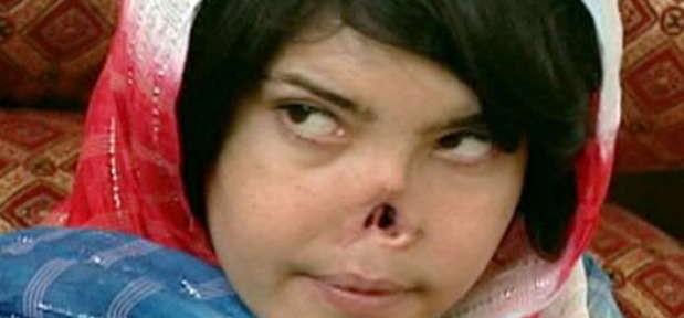 [Image: Bibi-Aishi-Taliban-Removed-Her-Nose-619x288.jpg]